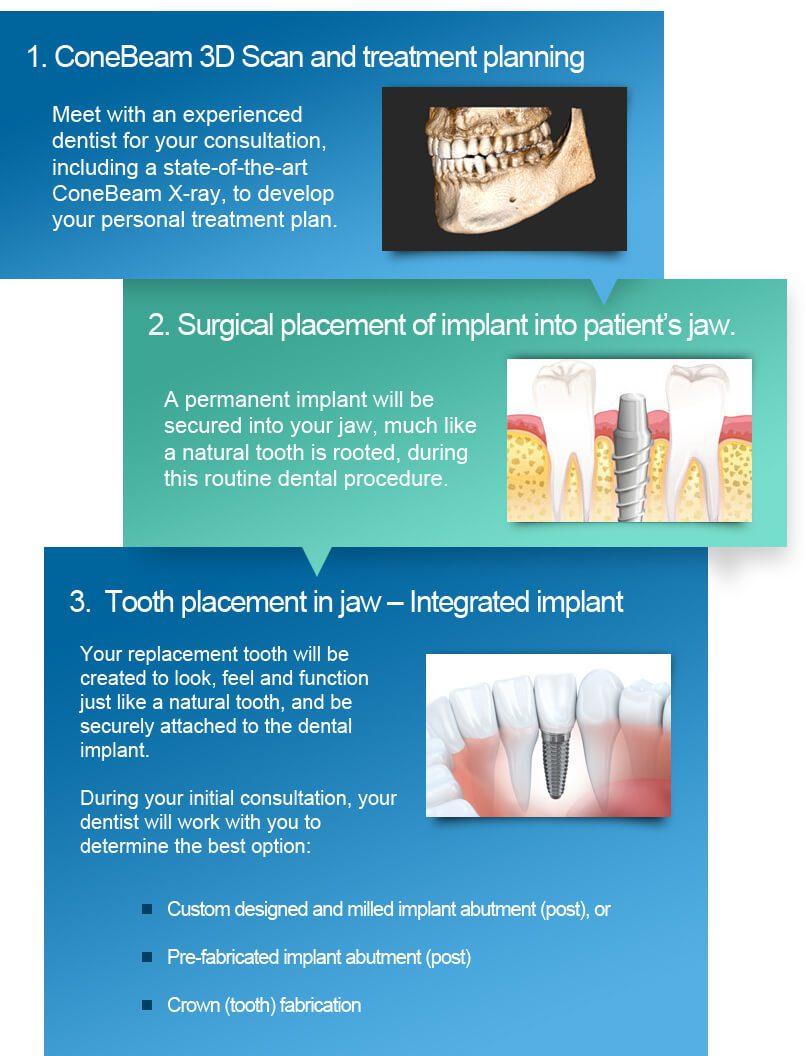 Dental Implants Chicago and Skokie - Implant Dentist Chicago