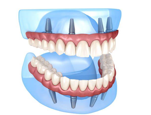 Dentures Implant Chicago